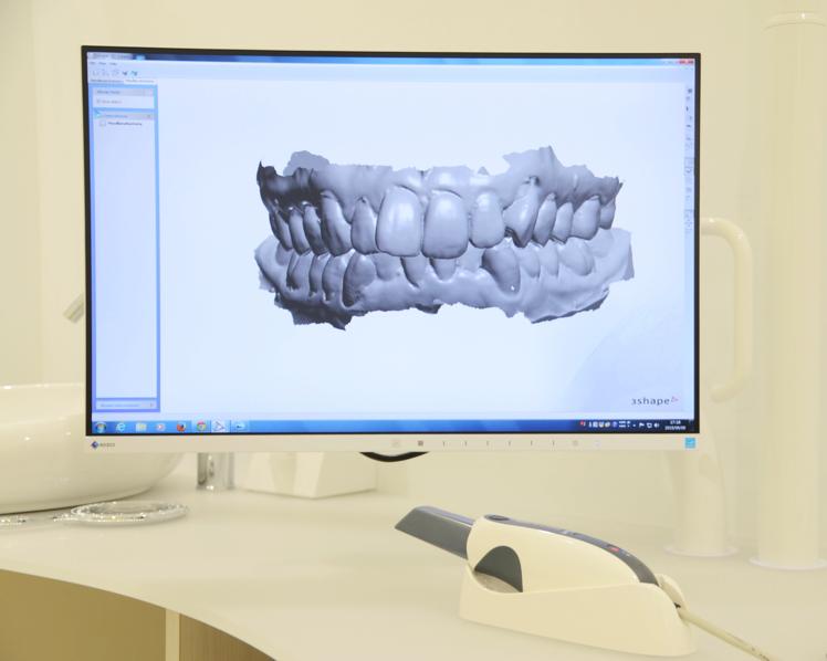 デジタル矯正システムのハンドスキャナーと3Dモデル