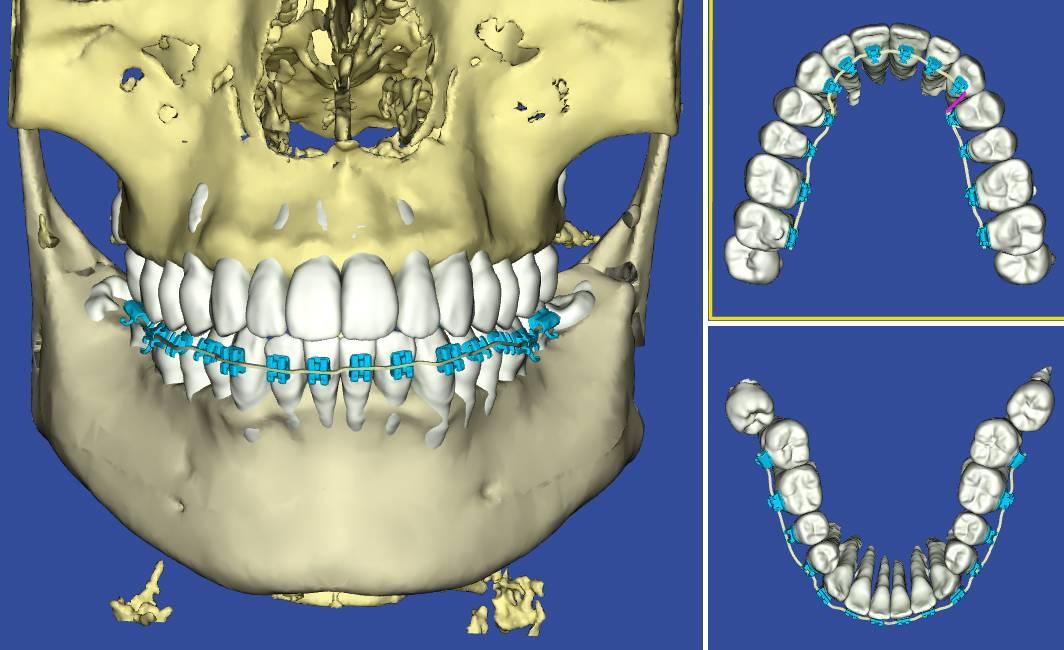 日本橋はやし矯正歯科スタッフのCTによる3Dモデル画像
