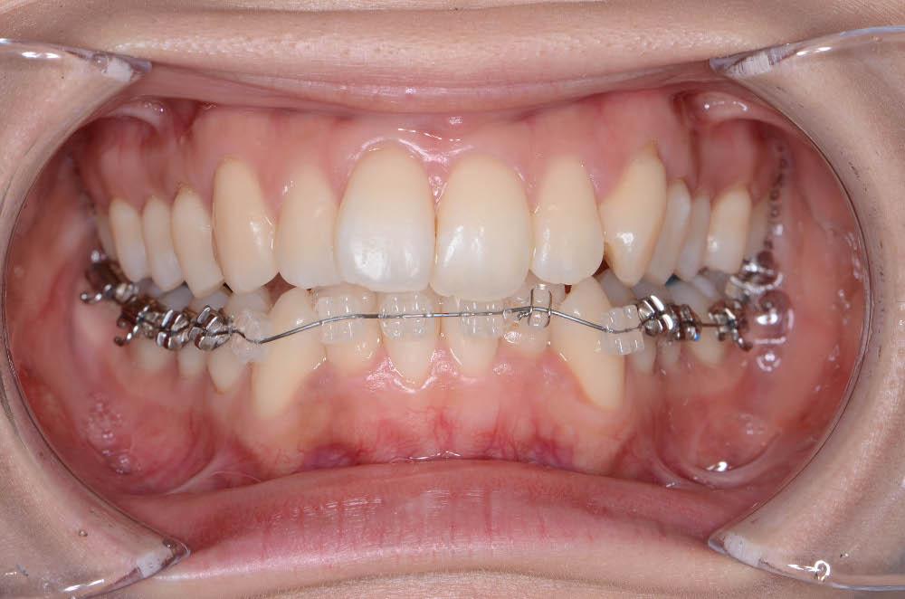 日本橋はやし矯正歯科で矯正中、前から撮った写真