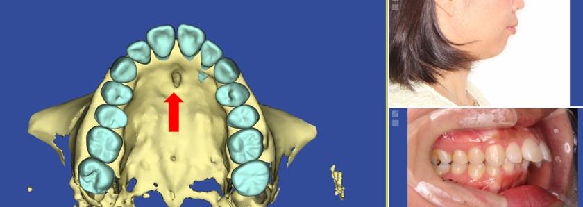 歯根吸収の原因となった切歯管と患者の写真
