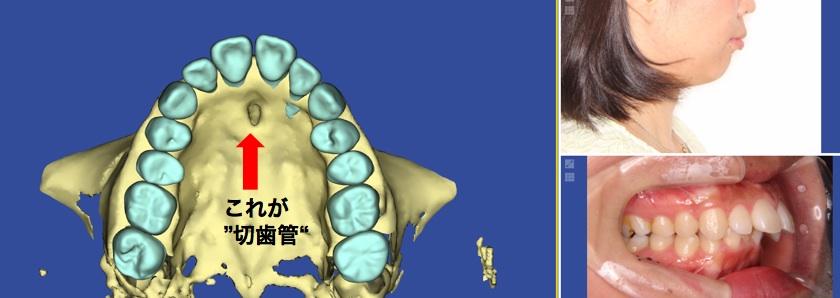 切歯管に関連して歯根吸収が起きた例の図