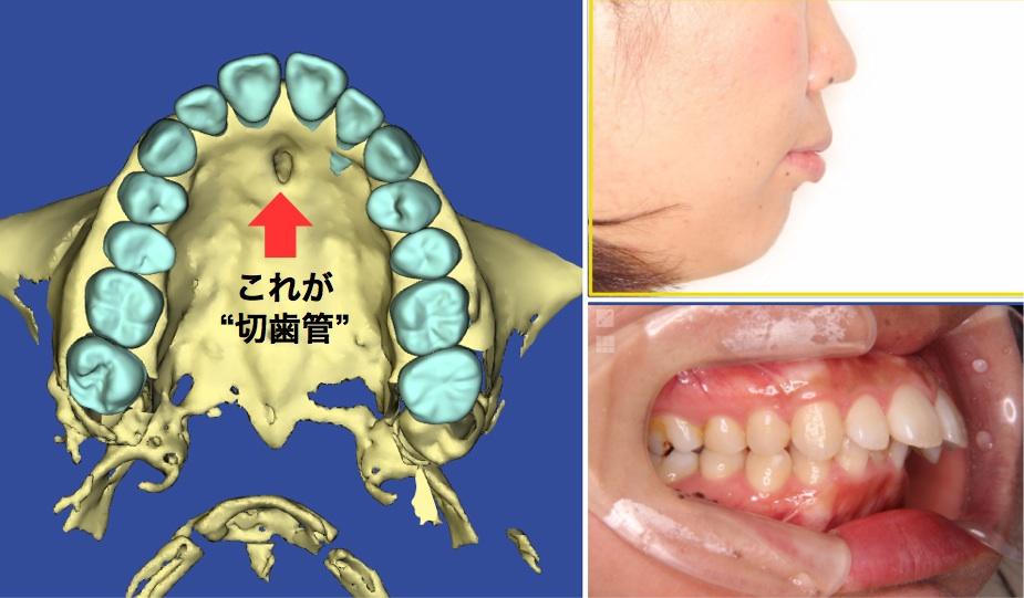 歯根吸収の切歯管の写真