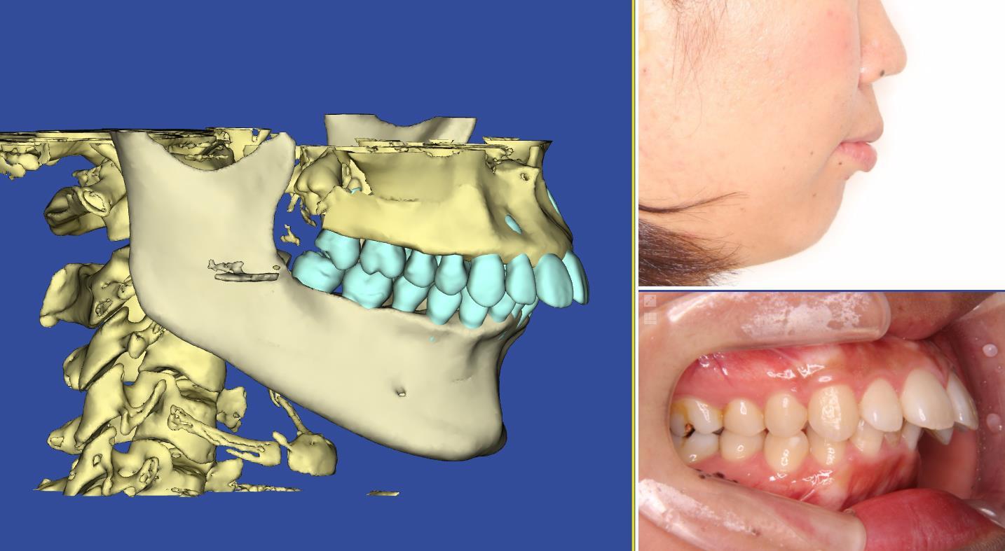 矯正治療の歯根吸収問題の写真