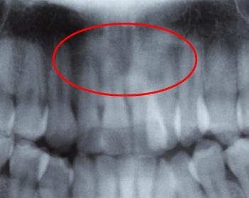 歯根吸収前の初診時の写真