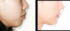 イーライン説明 術前と術後の写真、症例A