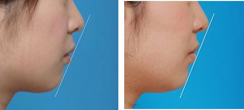 イーライン説明 術前と術後の写真、症例C