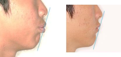 イーライン説明 術前と術後の写真、症例B