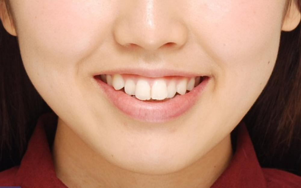 矯正前の歯の凹凸や八重歯の笑顔の写真