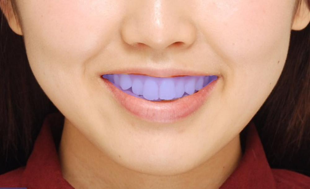 二次元の写真と三次元モデルを組み合わせて歯を選択した画像