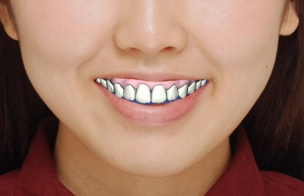二次元の写真に三次元モデルの歯を正確に再現した画像