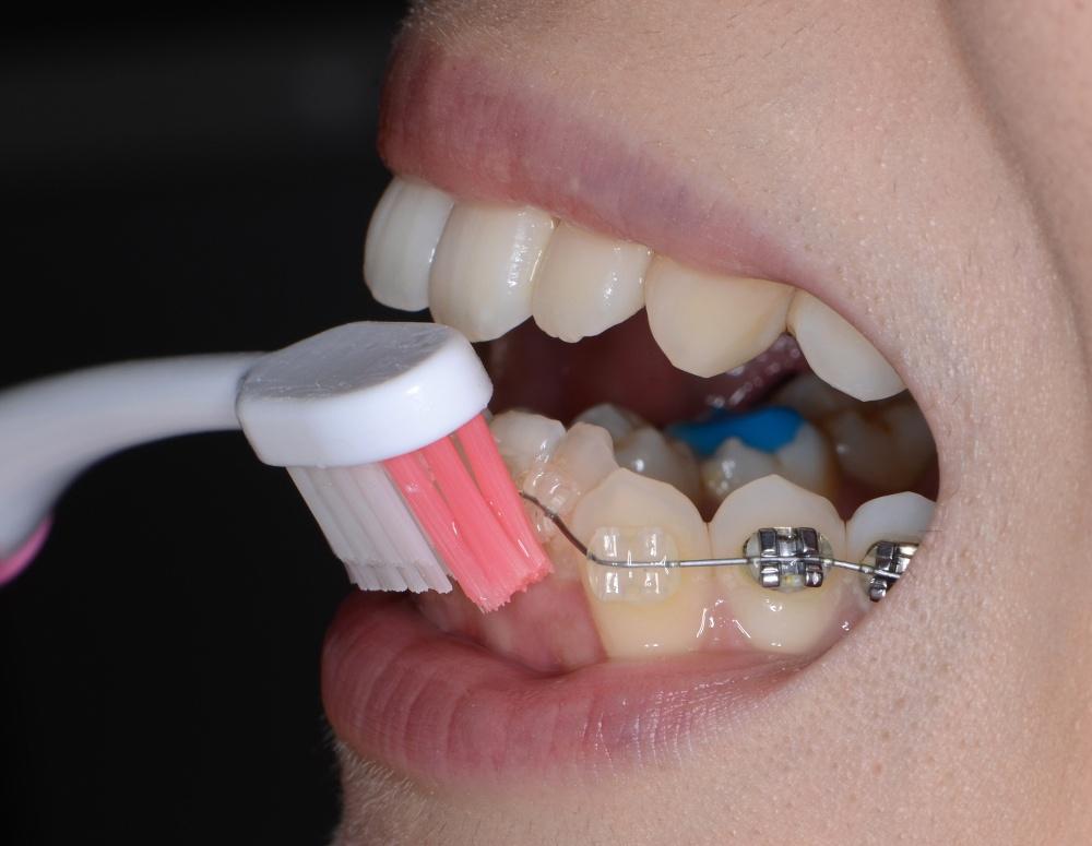 矯正中、歯と歯茎の境目の磨き方