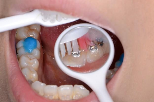 矯正中の歯磨き、デンタルミラーを使う
