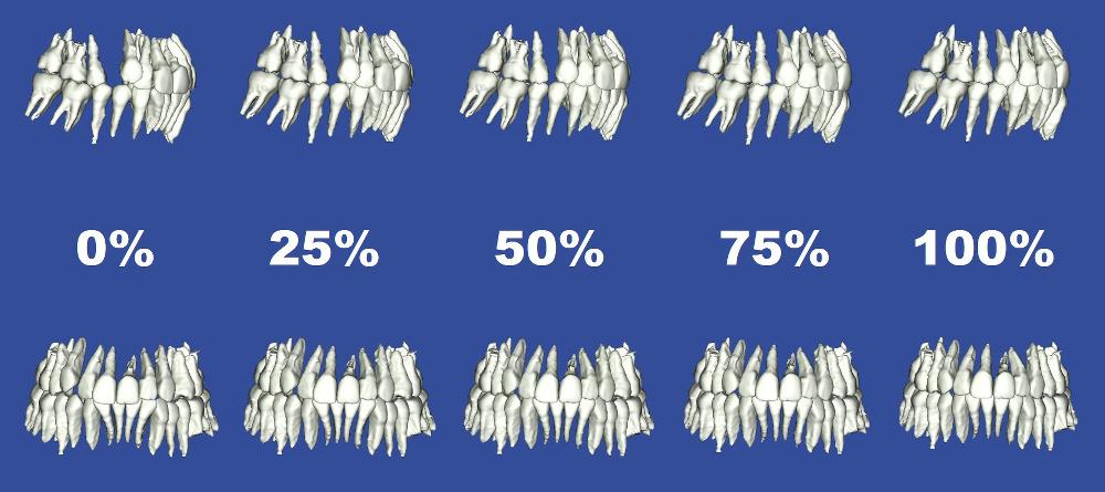 デジタル矯正システムにおけるパーセント予測図1