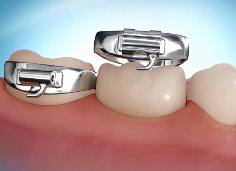 矯正装置のバンドの奥歯拡大