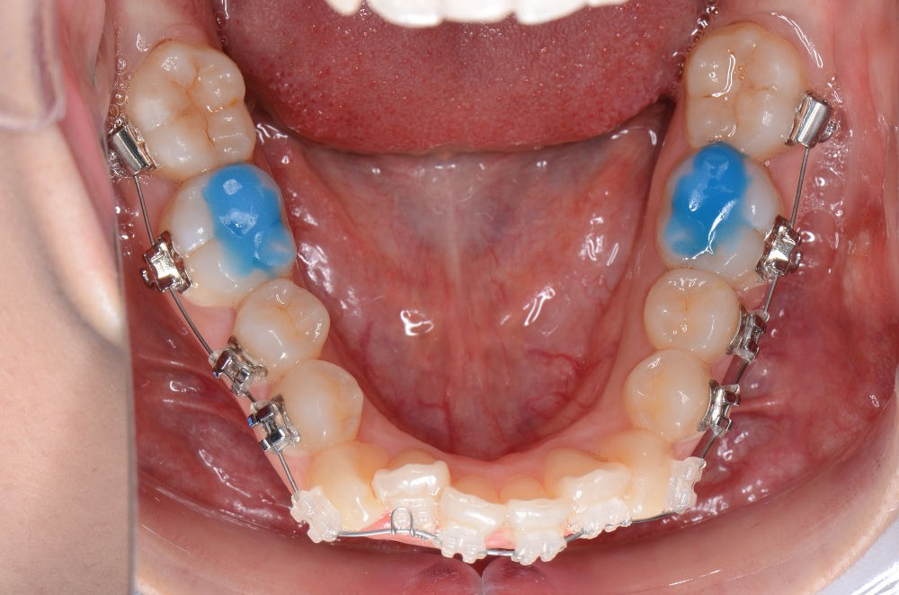 10月14日下顎歯列