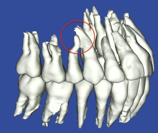 歯根がぶつかっている3Dモデル全体の写真