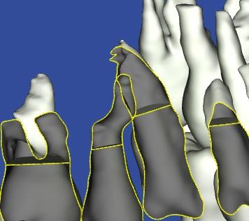 歯根がぶつかっている3Dモデル歯根部分の写真