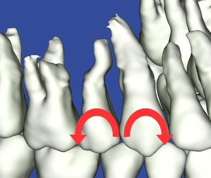 歯根がぶつかっている3Dモデル歯根部分矯正後の写真