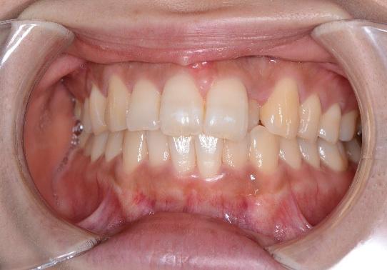 ソーシャル6矯正前の歯列1