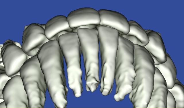 ソーシャル6が出っ歯にならないように調整したシミュレーション
