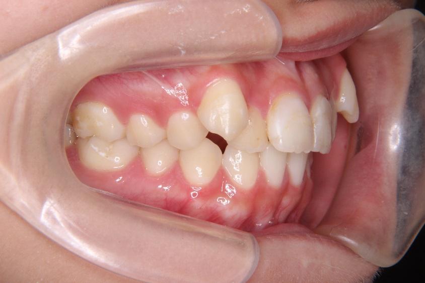 矯正治療の安全性、八重歯の写真