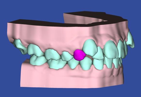 矯正治療の安全性、犬歯3Dモデルの写真