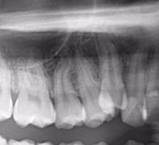 八重歯のレントゲン写真1