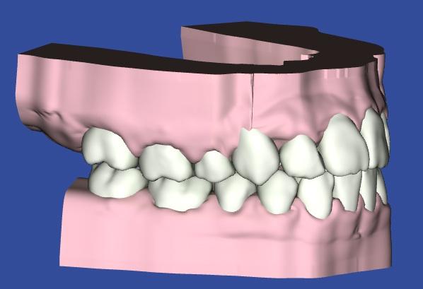 八重歯を治療した3Dモデルの写真
