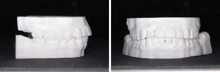 3Dプリンターで出力された歯の移動の予測モデル