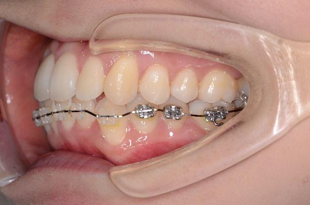 歯列矯正、前回の様子