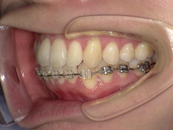 歯列矯正、今回の写真