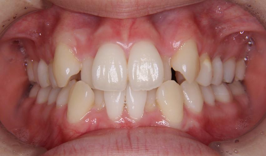 カスタム・コンピネーション治療を受ける患者の歯