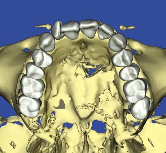 歯の凹凸、叢生の患者様の3Dシミュレーション