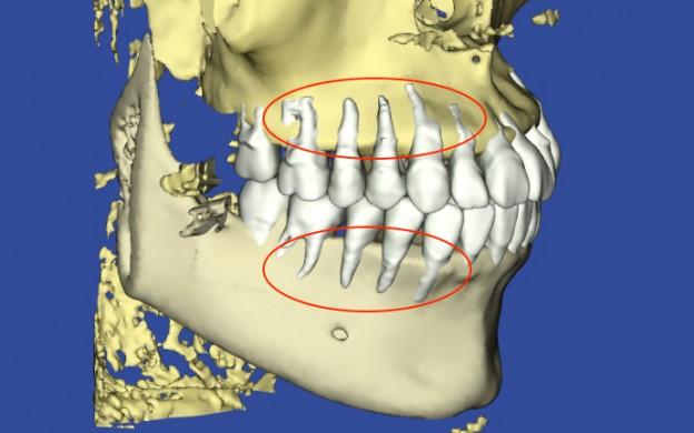 歯の凹凸、叢生の患者様の3Dシミュレーション最初の状態