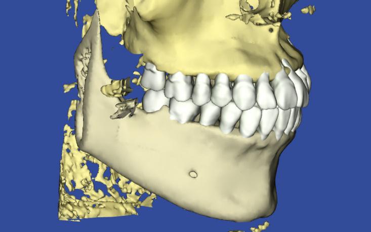 歯の凹凸、叢生の患者様の3DシミュレーションIPRでの結果