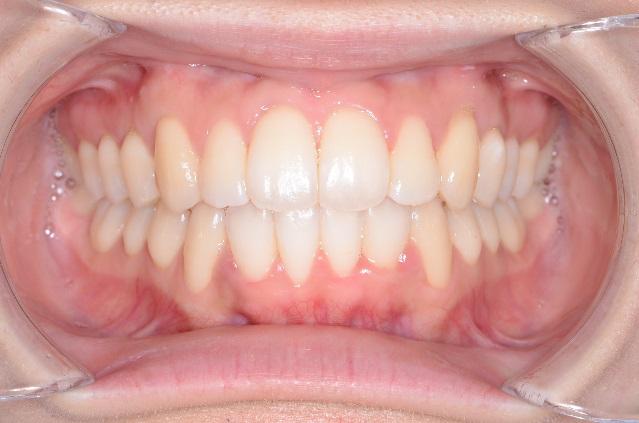リテーナー前歯