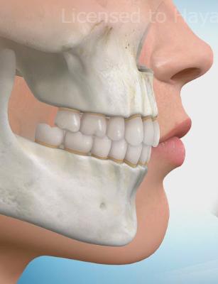 出っ歯の矯正治療について