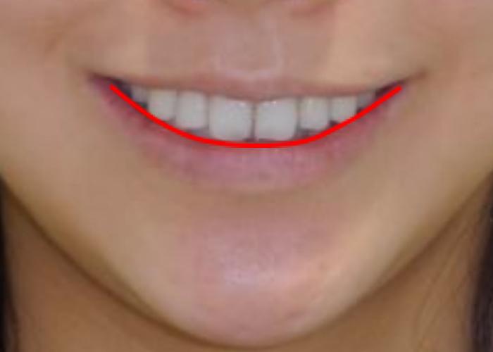 スマイルラインと矯正歯科治療 治療前