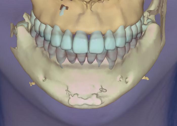 スマイルラインと矯正歯スマイルラインと矯正歯科治療 骨格シミュレーション科治療 骨格