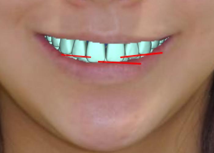 スマイルラインと矯正歯科治療 はの置き換え