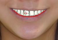スマイルラインと矯正歯科治療 歯の位置の整え