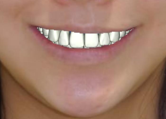 スマイルラインと矯正歯科治療 スマイルラインを手に入れた