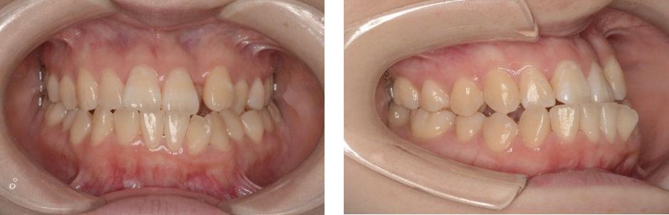 顎変形症初診の状態