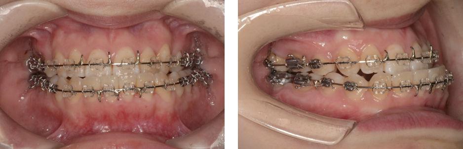 顎変形症術前手術が終わった状態