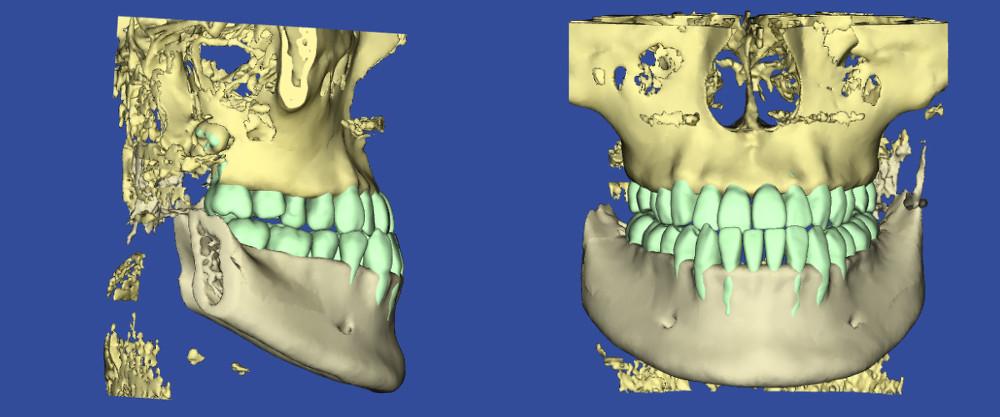 サージェリーファースト・アプローチの初診時の3Dシミュレーション