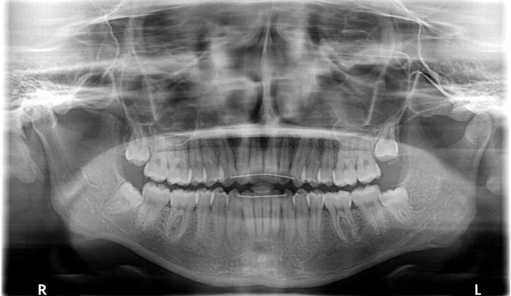 親知らず抜歯前のレントゲン写真