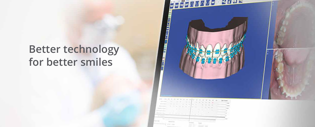better technology for better smiles