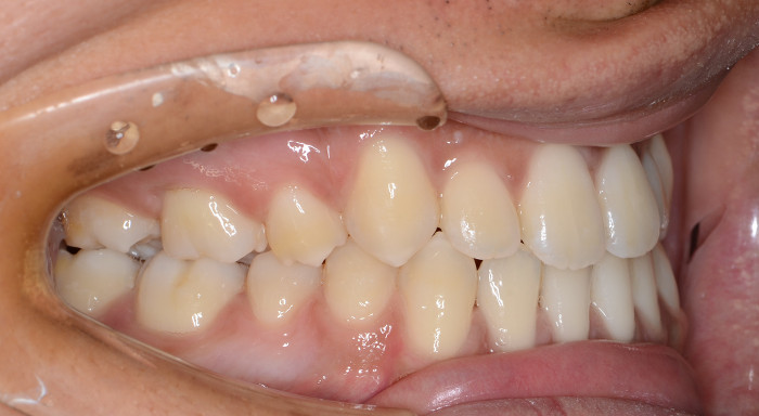 サージェリーファースト・アプローチの優れた治療効果 術後の口腔内写真