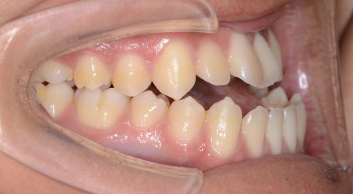 サージェリーファースト・アプローチの優れた治療効果 術前の口腔内写真