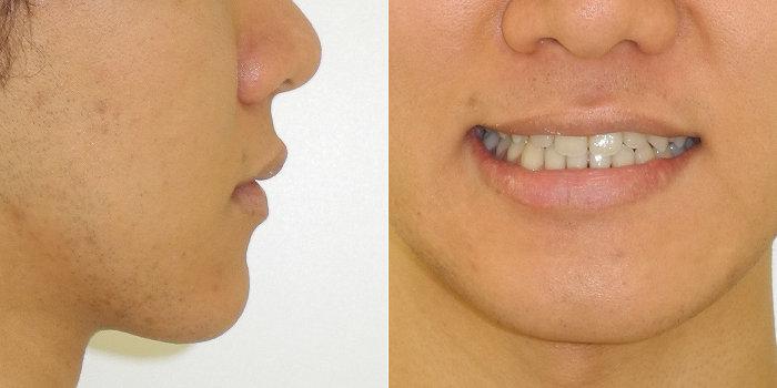 サージェリーファースト・アプローチの優れた治療効果 術後の顔貌写真